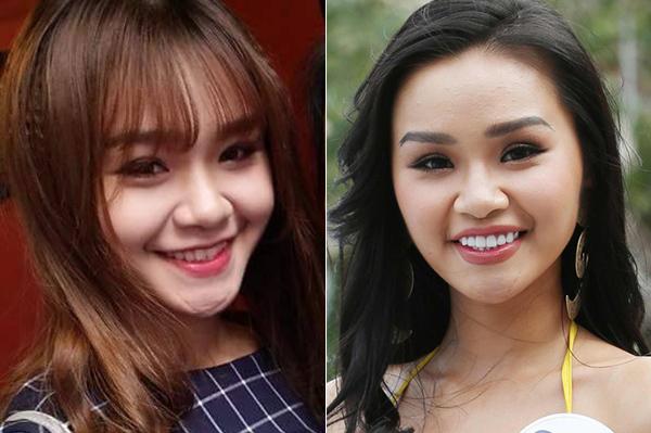 3 cô gái xinh như mộng ở Hoa hậu Hoàn vũ bị nghi sửa răng, thẩm mỹ - 7
