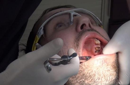 Bị mòn cả hàm răng vì thói quen uống nước ngọt có ga - 1