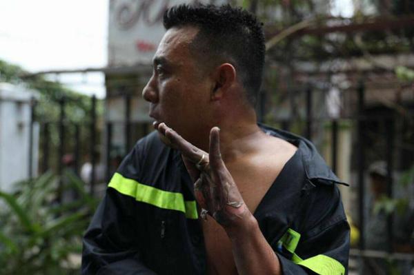 Bàn tay anh lính cứu hỏa trôi tuột da vì bỏng trong vụ sơ cứu nạn nhân hỏa hoạn gây xót xa. Ảnh: Facebook.