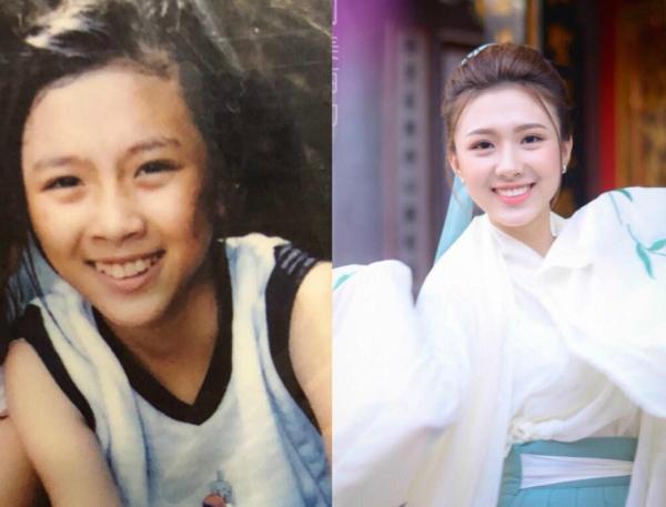 Bức ảnh Khánh Linh đăng trên mạng xã hội cho thấy kết quả bất ngờ việc niềng răng thành công.
