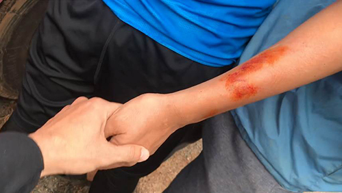 Kiều Minh Tuấn bị thương vì cảnh phim này.
