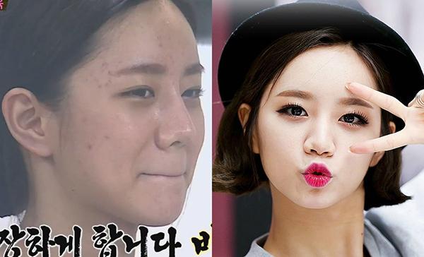 Hyeri (Girls Day) khi không có lớp kem nền dày che phủ thì cũng có làn da kém mịn màng như bao cô gái bình thường.