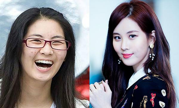 Khó phủ nhận nhan sắc của Seo Hyun được hỗ trợ rất nhiều bởi phấn son. Cô nàng từng có thời gian bị nổi mụn dày đặc.