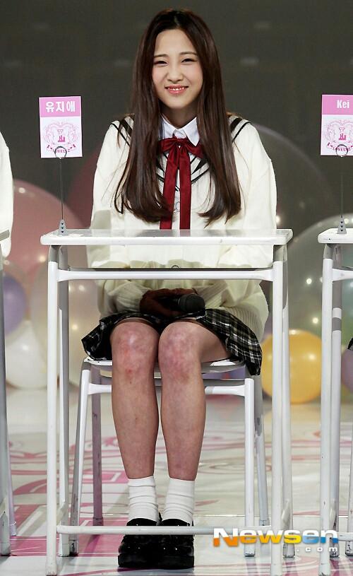 Netizen từng sốc tận óc khi nhìn thấy đôi chân đầy những vết bầm tím loang lổ của cô nàng Ji Ae (Lovelyz).