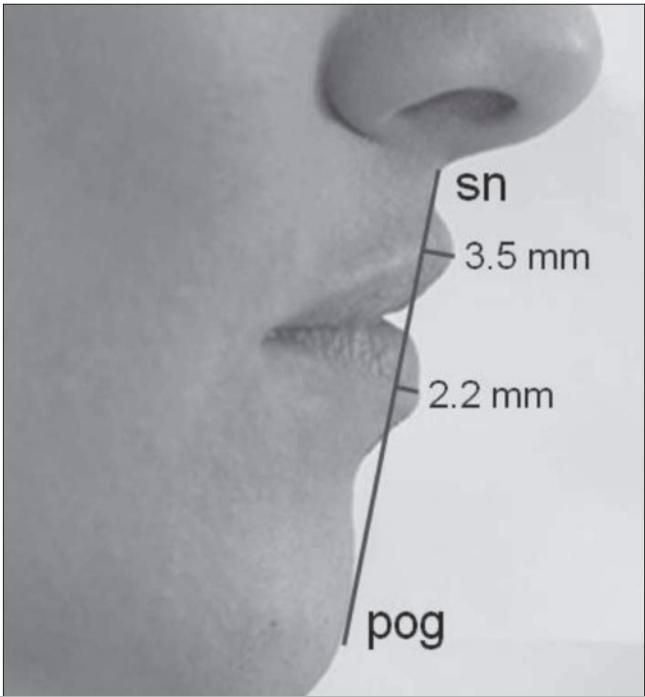 """<p> Theo đó, muốn biết đôi môi của bạn có """"hoàn hảo"""" hay không, hãy tính theo cách sau: kéo một đường thẳng từ chân mũi đến cằm, nếu bề rộng môi trên không quá 3,5mm, môi dưới không quá 2,2mm thì sẽ là một đôi môi đẹp.</p>"""