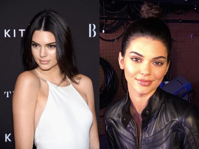 """<p> Theo giáo sư, những đôi môi như của Kylie Jenner, Kim Kardashian... là những tác phẩm """"xấu xí"""" của phẫu thuật thẩm mỹ, đi ngược lại tỷ lệ vàng truyền thống lâu nay, dựa theo quan điểm của họa sĩ Leonardo da Vinci.</p>"""
