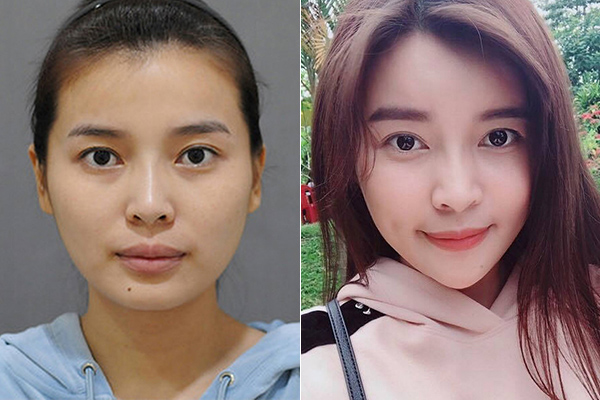 Những hình ảnh của người đẹp từ khi chưa phẫu thuật thẩm mỹ cũng bị đào mộ lại. Hồi tháng 10/2017, Cao Thái Hà từng thừa nhận đã sang Hàn Quốc để trải qua cuộc trùng tu nhan sắc bằng dao kéo. Cụ thể, vì tự ti với gương mặt góc cạnh, khuôn hàm vuông nên cô đã thực hiện hàng loạt ca phẫu thuật nhưhạ gò má, gọt hàm Vline, cấy mỡ tự thân& để cải thiện.