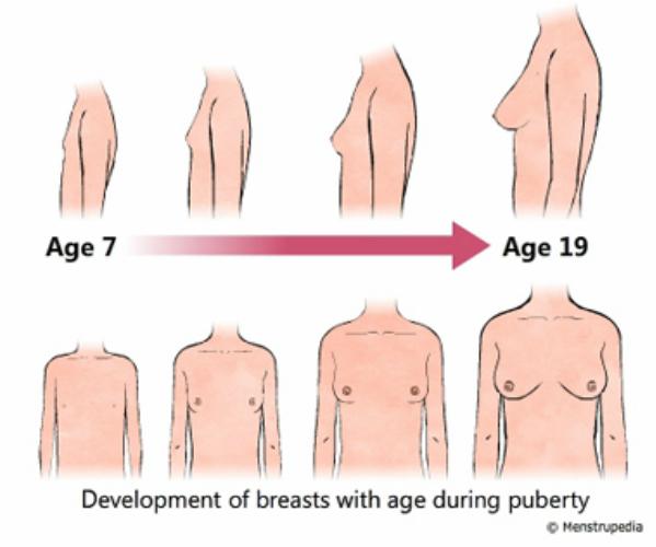 Sự phát triển của ngực trong tuổi dậy thì ở các bé gái từ 7 tuổi đến 19 tuổi.