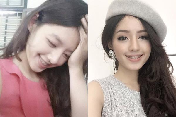 Trước khi tham gia The Face và thành gương mặt gây sốt, Khánh Linh từng có hành trình 3 năm kiên cường đeo răng sắt. Quá trình này được cô nàng thường xuyên chụp lại và đăng tải lên trang cá nhân để chia sẻ cùng mọi người.