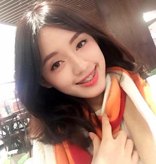 Dù nụ cười chưa hoàn hảo trong thời gian đang chỉnh sửa răng nhưng Khánh Linh vẫn rất tự tin chụp hình.