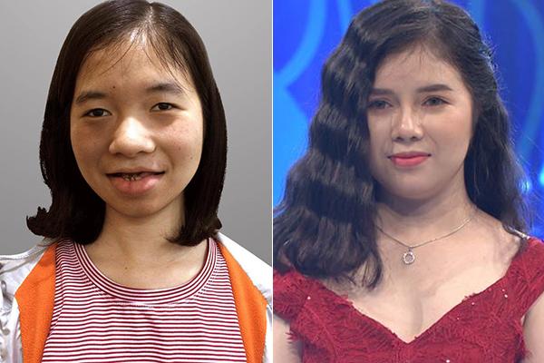 Hà Phạm trước và sau khi phẫu thuật thẩm mỹ.