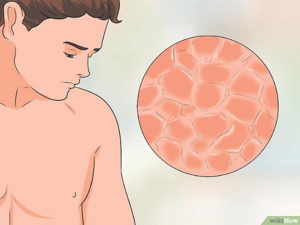 Ngực đau rát sưng đỏ, vì đâu? - 3