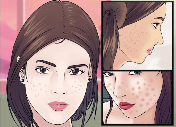 Những triệu chứng sức khỏe kỳ lạ mà bạn gái không nên bỏ qua - 2