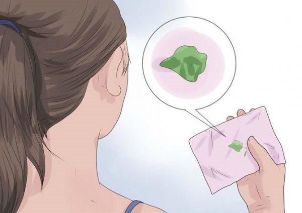 Ra nhiều khí hư có phải nhiễm viêm âm đạo không?