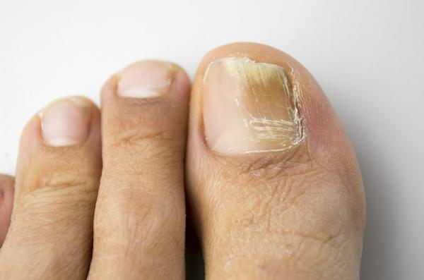 Móng chân bỗng chuyển đen, dấu hiệu bệnh gì? - 1