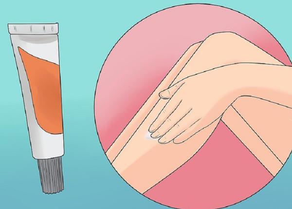 Làm cách nào để loại bỏ lông mọc ngược? - 3