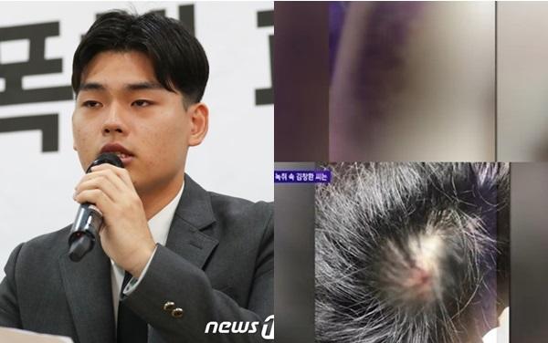 Lee Seok Chul cho biết những trận bạo hành này đã gây tổn thương nghiêm trọngđến thể xác và tinh thần của nhóm.