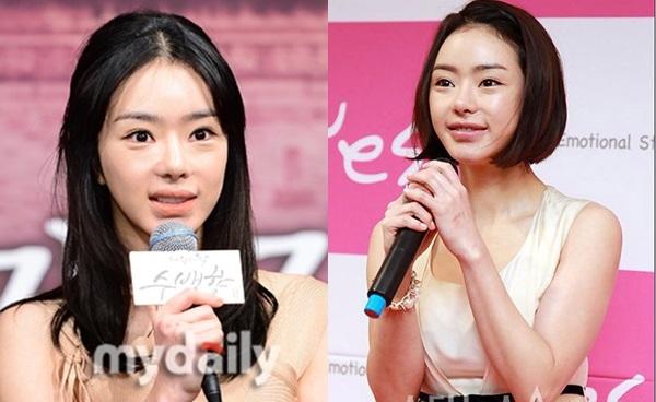Không may mắn như những mỹ nhân dao kéo khác, gương mặt Seo Woo xuống cấp rất nhanh.Trong giai đoạn 2009-2013, khuôn mặt nữ diễn viên dần trở nên thiếu tự nhiên và xuống sắc. Cô nàng từng nhiều lần xuất hiện với gương mặt bị sưng, biến dạng đến ngỡ ngàng.