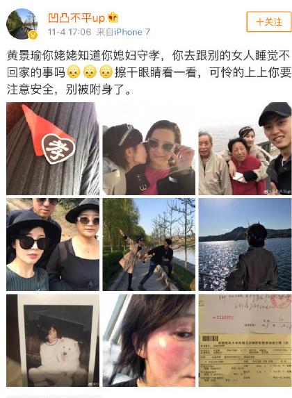 Ảnh Vương Vũ Hinh đi chơi cùng gia đình Hoàng Cảnh Du và khuôn mặt sưng đỏ của cô.