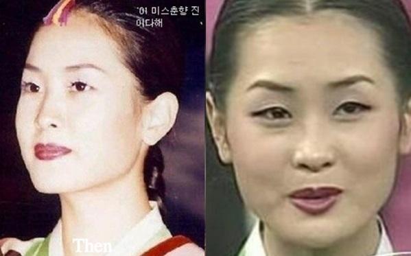 Lee Da Hae thời quá khứ có khuôn mặt thô kệch với đường nét quê mùa.