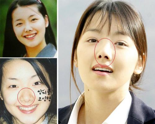 Ảnh quá khứ của So Yi Hyun cũng không phải quá xấu.