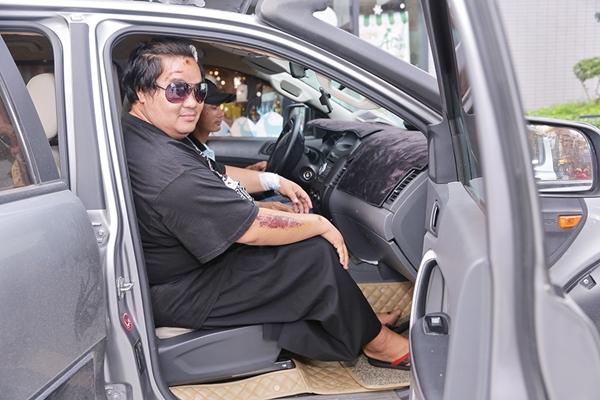 Hoàng Mập trốn viện đi sự kiện sau tai nạn giao thông