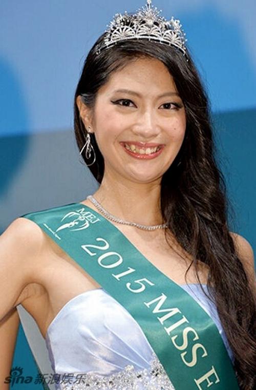 Ayano Yamada cũng gây nhiều tranh cãi khi đăng quang Hoa hậu Trái đất Nhật Bản 2015. Điểm trừ trên gương mặt của cô là hàm răng khấp khểnh, ố vàng.