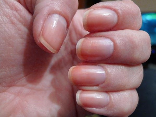 Những biểu hiện của móng tay tiết lộ sức khỏe của bạn