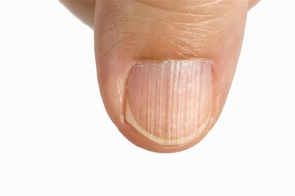 Những biểu hiện của móng tay tiết lộ sức khỏe của bạn - 1