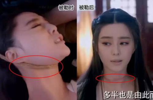 Vết thương do thắt cổcủa Phạm Băng Băng khi tham gia phim Võ Tắc Thiên truyền kỳ biết di chuyển?