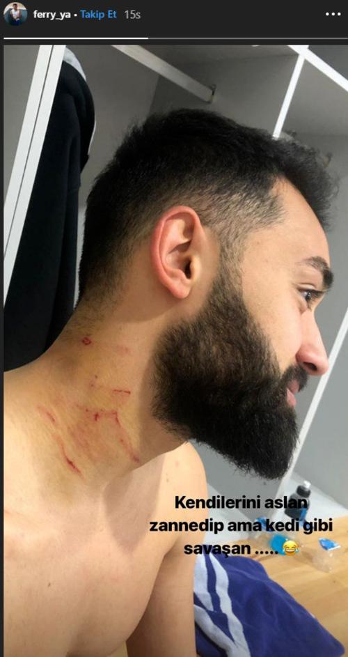 Bức ảnhYazgan chia sẻ sau trận đấu với nhiều vết thương ở cổ.