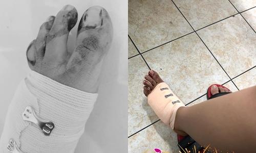 Phan Mạnh Quỳnh và bạn gái gặp tai nạn khâu 20 múi.