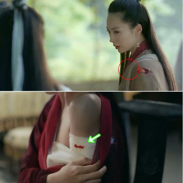 Đinh Mẫn Quân (Đào Lạc Y đóng) bị Chu Chỉ Nhược dùng kiếm cắt một nhát lên vai. Nhưng khi Đinh Mẫn Quân trở về phòng, kéo áo chữa thương, vết cắt đã tự động di chuyển xuống cánh tay.