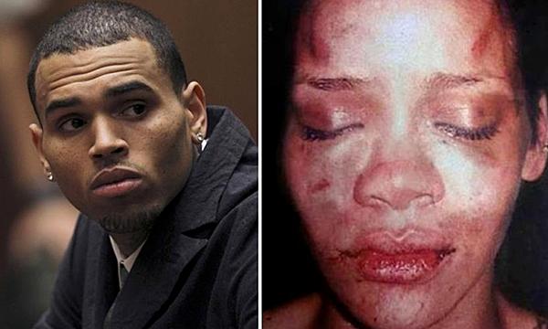 Những hình ảnh Rihanna bị Chris Brown bạo hành được chia sẻ lại trên mạng xã hội.