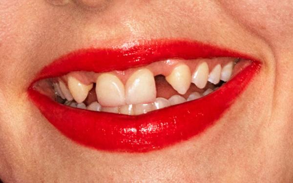 Hình ảnh quảng bá gây tranh cãi của son môi Gucci.