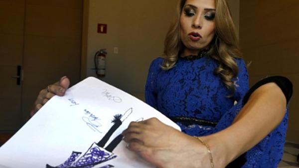 Adriana Macias không tay bẩm sinh.