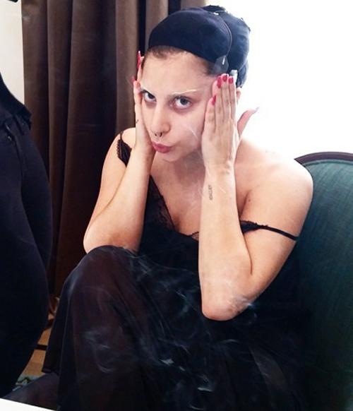 Muốn căng da mặt mà không cần tiêm botox, nhiều sao áp dụng cách tạm thời là kéo căng da, dán băng dính cố định vào dưới cằm hay tóc. Cách này được Lady Gaga thường xuyên áp dụng. Tuy nhiên nó có thể không đạt hiệu quả quá cao, gây đau đớn.