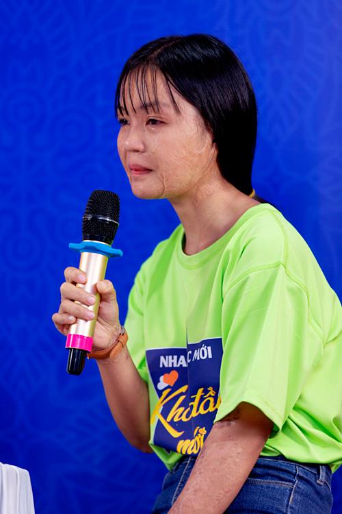 Tơ Thị Hương nhiều lần rơi nước mắt khi kể về tuổi thơ đau đớn vì bỏng nặng.