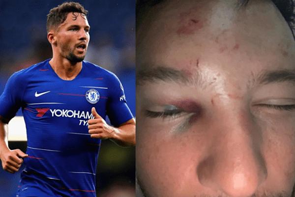Cầu thủ Daniel Danny Drinkwater bị đấm bầm mắt.Ảnh: PA.