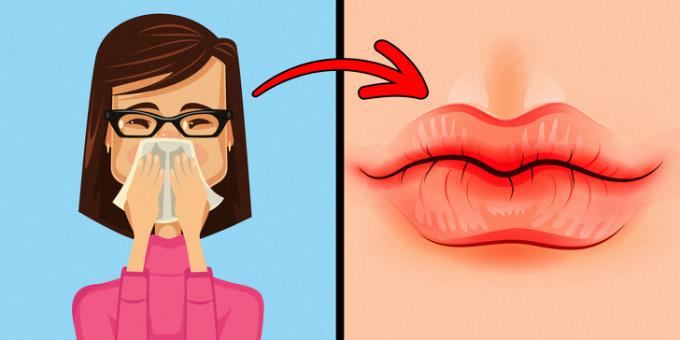 <p> <strong>2. Môi khô và nứt nẻ</strong><br /> Đôi môi khô, hay bị nứt nẻ có thể là do căng thẳng, thay đổi khí hậu hoặc bị dị ứng. Trong trường hợp do thiếu ẩm, bạn có thể uống nhiều nước hoặc bôi kem dưỡng da. Còn nếu do dị ứng kèm theo những triệu chứng mẩn ngứa khó chịu, bạn hãy liên hệ để gặp bác sĩ.</p>