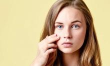 Có cách nào trị mụn cho tuổi teen?