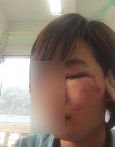 Chị Đỗ Thúy H. bị thanh niênhành hung trên xe xe buýt.