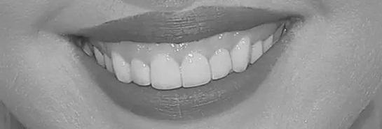 Đoán sao Hollywood qua... răng - 1