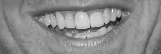 Đoán sao Hollywood qua... răng - 3