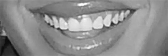 Đoán sao Hollywood qua... răng - 4