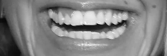 Đoán sao Hollywood qua... răng - 6