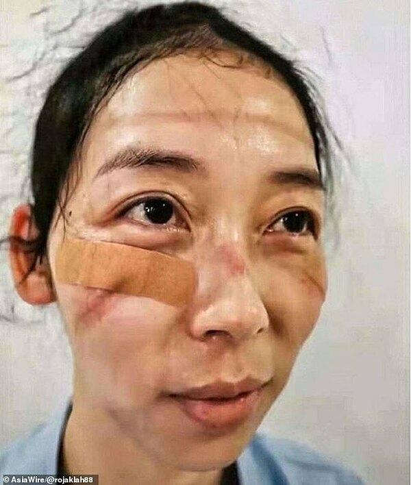 Gương mặt in hằn vết đeo khẩu trang của một nhân viên y tế.