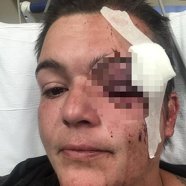 Linda Tirado bị bắn mù mắt trái vĩnh viễn. Ảnh: Linda Tirado