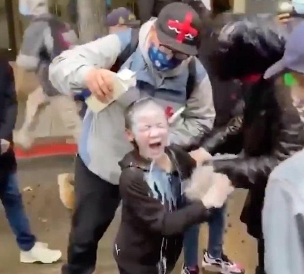 Người biểu tình đổ chất lỏng giống sữa vào mắt cô bé để đẩy chất cay ra ngoài.