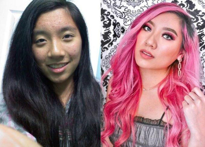 """<p class=""""Normal"""">""""15 và 23 tuổi: Da của tôi sáng hơn và tóc chuyển sang màu hồng"""".</p>"""